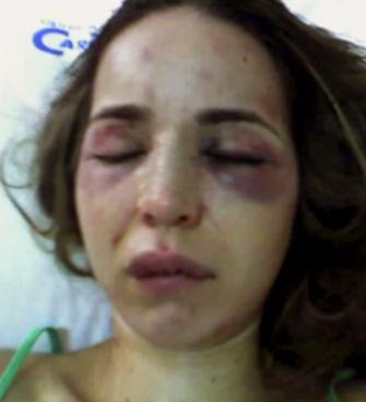Dura imagen de violencia doméstica.