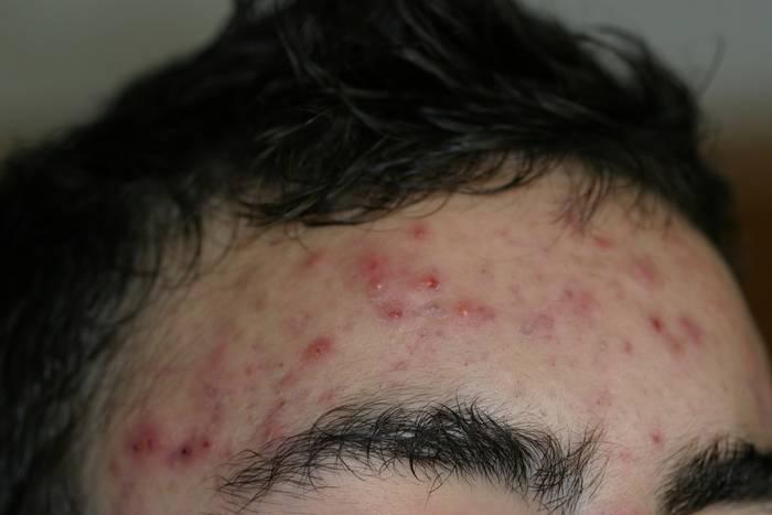 Frente con acné.
