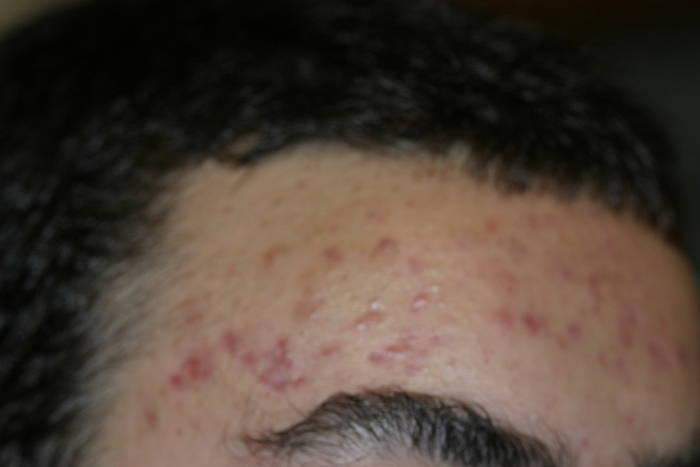Curación del acné 10 sesiones (una al día) de luminoterapia.