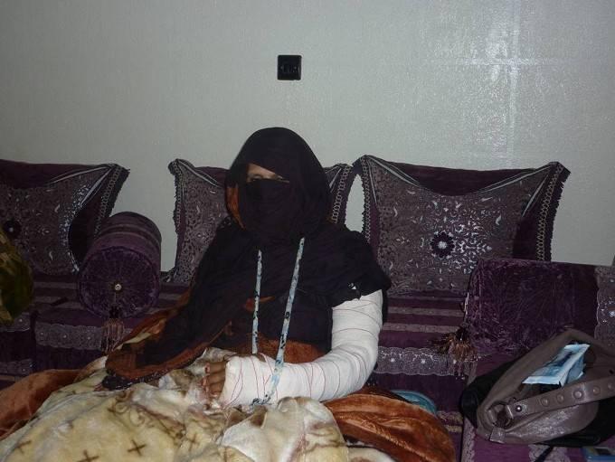 Mujer saharaui que fue agredida por las fuerzas de seguridad marroquíes.